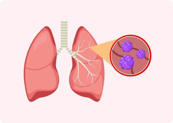 Akciğer Kanseri Akciğer Kanseri Nedir?